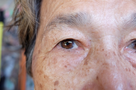 Cerrar el ojo de cataratas, anciana Asia
