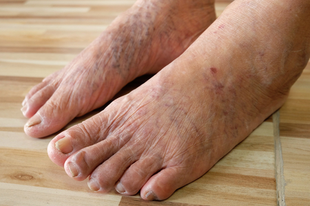 Close up varicose veins on the legs and feet of an Asian old woman Imagens