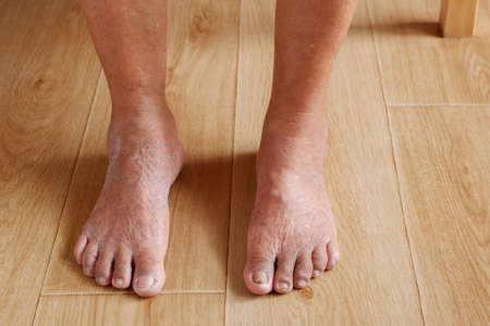 Focus of leg that is varicose veins and wrinkled skin of the elderly asian woman, Various illnesses of the elderly and good health concept. Stockfoto
