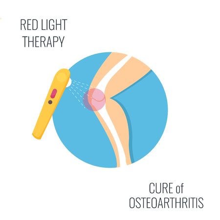 Osteoarthritis vector illustration. Medical icon