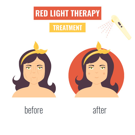 Concept of laser skin rejuvenation. Red light therapy. Stock Vector - 124109202