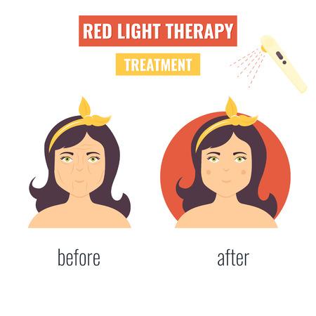 Concept of laser skin rejuvenation. Red light therapy.