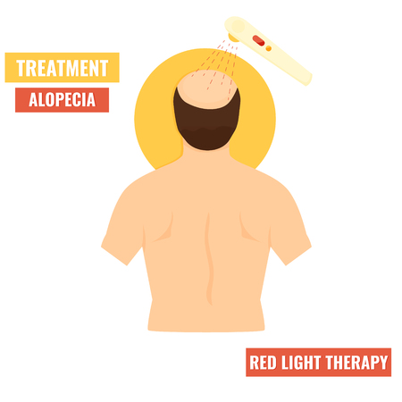 Ilustration of man with alopecis. Hair growth stimulation. Red light therapy treatment. Cosmetology concept.