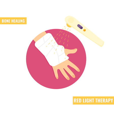 Gypsum plaster bandaged hand. Fracture recovery. Red light therapy