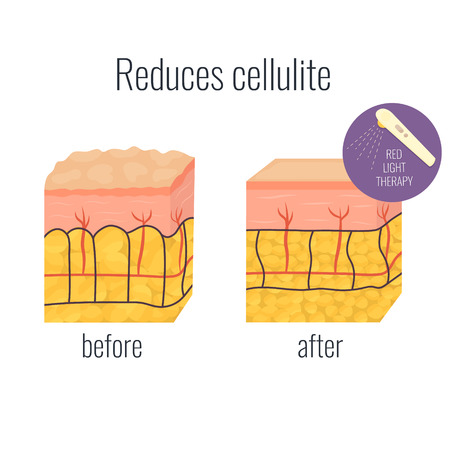 Cell illustration with cellullite and without. Red light therapy treatment. Befor and after cell structure