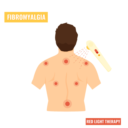 Fibromyalgia disease. Red light therapy