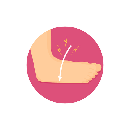 Ilustration of an ankle strain. Bone injury icon. Human healthcare Vectores