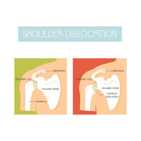 Illustration of a healthy shoulder and dislocation