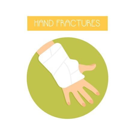 Illustration of a fractured hand with a cast. Ilustracja