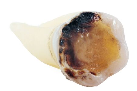 extracted caries tooth isolated on white background close-up macro, lower molar