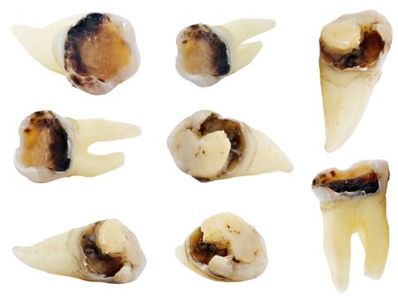 extracted carious teeth isolated on white background, set of 8 objects, high resolution