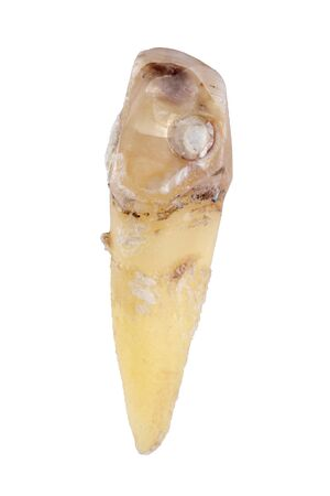 extracted caries tooth isolated on white background close-up macro Standard-Bild