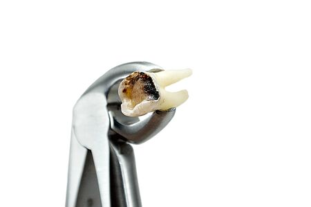 extractive caries tooth in surgical forceps isolated on white background close-up macro, lower wisdom molar, broken tooth filling
