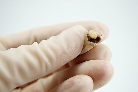 extractive caries tooth in the hand of a dentist surgeon on a white background close-up macro, upper wisdom molar, destroyed tooth filling