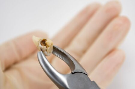 caries-affected destroyed with a large cavity removed human tooth in surgical forceps, molar tooth, wisdom tooth, tooth extraction operation, dental surgery, dental care