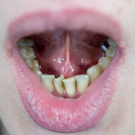 crooked teeth on the lower jaw, crowding of teeth in the anterior part, crowded incisors