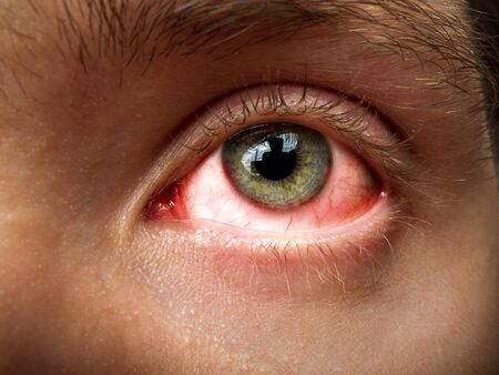 conjunctivitis, conjunctival inflammation, red eyes, infection and inflammation, close up eye