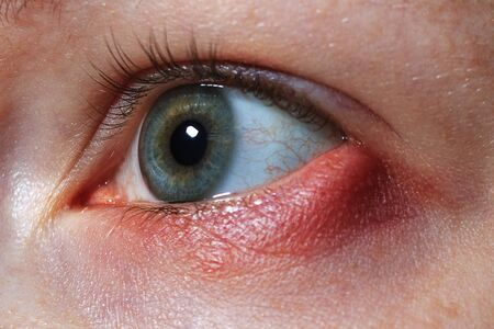 stye on the girl's eye, inflammation of the hair bulb on the eyelids, hordeolum, bacterial infection of an oil grand in the eyelid Stock Photo