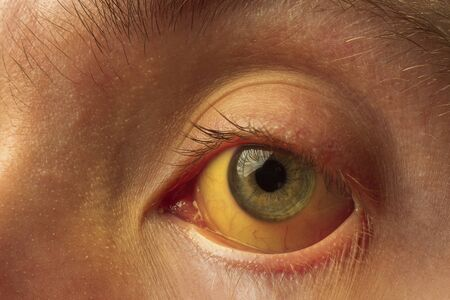 yellow staining of the sclera of the eye in diseases of the liver, cirrhosis, hepatitis, bilirubin 版權商用圖片
