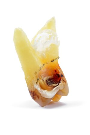 affected by caries, destroyed with a large cavity, removed human tooth with large roots, chewing molar tooth, wisdom tooth, tooth extraction operation, dental surgery, dental care