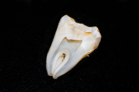 close-up cut tooth