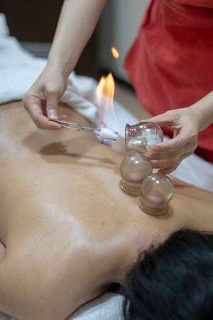 Acupuncture therapist putting a fire cupping glass on the back of a young woman