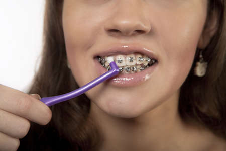 teeth and bracket system cleaning procedure using round toothbrush for girl standing isolated over white background