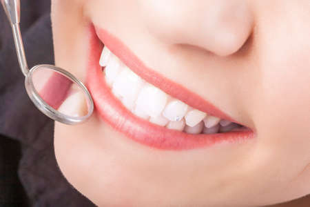 Dental Treatment with Mouth Mirror of Young Caucasian Female During Her Oral Examination. Horizontal Image