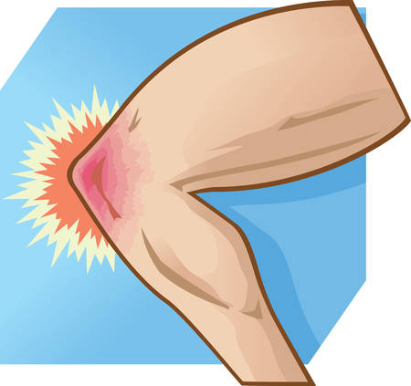 dolor de rodilla: Rodilla ilustración Dolor
