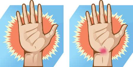 ergonomie: Handschmerzen
