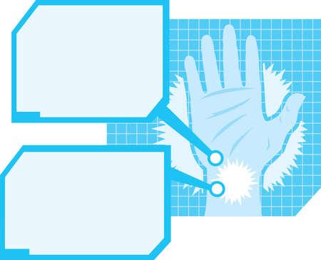 Hand pain diagram  Vector