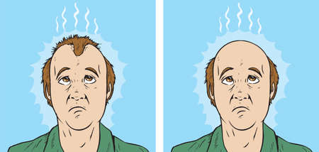 Hair loss cartoon Stock Illustratie