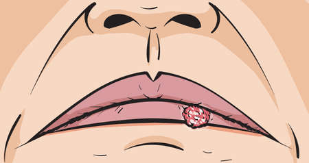 herpes: Cold Sore
