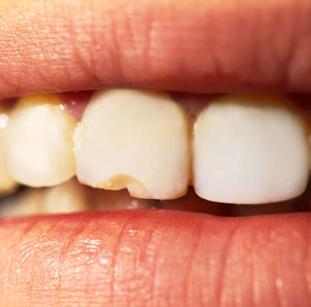 깨진 분할 치아의 매크로 샷
