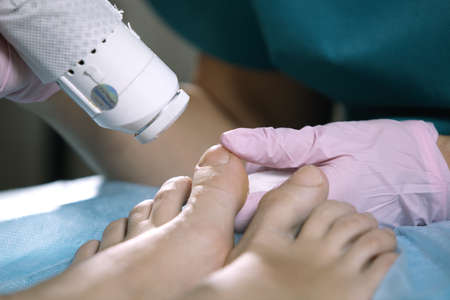 Podiatrist treating onychomycosis, a fungal infection of the toenails, with a laser in a hospital, closeup of the hands, laser and feet of the patient