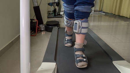 Boy with foot drop system exercising on the treadmill. View to the feet. Treatment with functional electrical stimulation Фото со стока