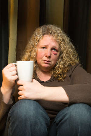 abused: a middle aged woman with a black eye looks sad and intropsective.