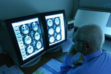 brain scan Stock Photo - 386760