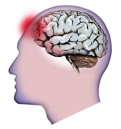 headaches: human brain, cerebellum and headaches Stock Photo