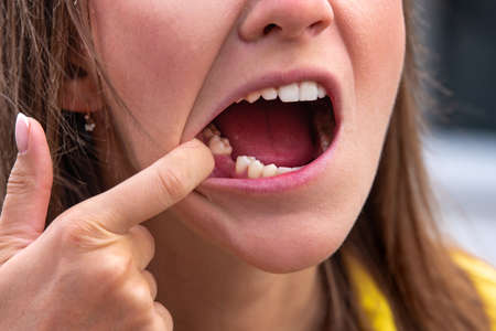 Young woman without tooth on lower jaw. Missing tooth. Waiting an implant after tooth extraction