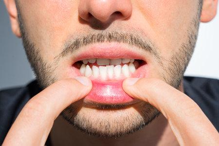 Young man crooked teeth. Reason to install teeth braces. Bad teeth