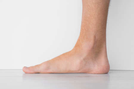 Close up of mans foot with strong flat feet also called pes planus or fallen arches.
