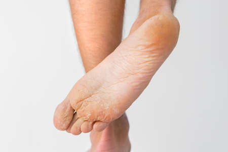 Close up of dry feet. Peeling and cracked foot. Fungal infection or athletes foot, dry skin, dermatitis, eczema, psoriasis, sweaty feet or dehydration. Health care concept