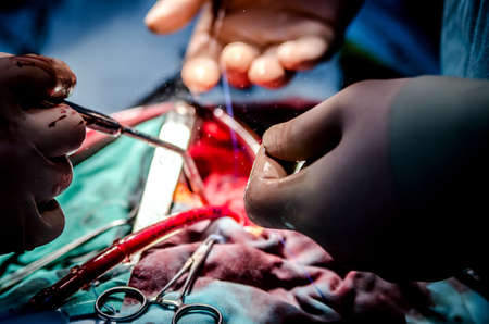 aneurism: The process of cardiac surgery. The focus is on the medical clamp and suction in the surgeons arm. A cut is visible in the background.