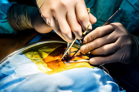 The surgeon provides access to the heart during cardiac surgery. Stock Photo