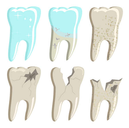 Different stages of decayed teeth with caries and plaque.Oral cavity disease.Root canal filling.Template for dentistry officeMolars with cracks and holes. Damaged enamel problems. Orthodontics clinic