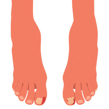 Feet with ingrown toenails.Disease, fungus or inflammation in fingernails. Legs problem area with pus and blood. 矢量图像