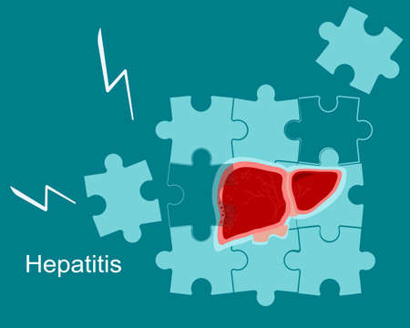 Concept of hepatitis A,B,C,D, cirrhosis.Fragile and broken liver falls apart by puzzles.World hepatitis day. Organ care. Vaccinate, threat, test. Vector in flat style. Medical banner.
