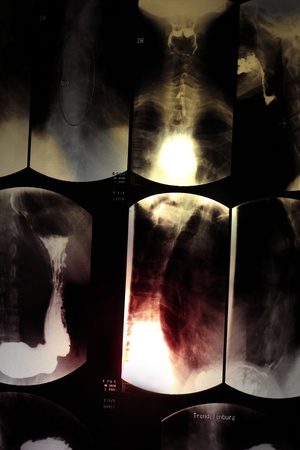 Image of  esophagus x-ray with lighting effects photo