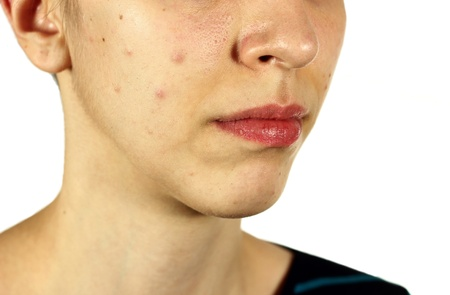 Girl with bad skin acne and black heads on white background